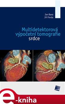 Multidetektorová výpočetní tomografie srdce - Jan Baxa, Jiří Ferda e-kniha