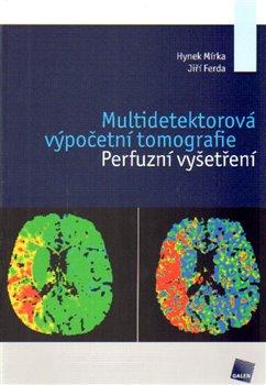 Multidetektorová výpočetní tomografie. Perfuzní vyšetření - Jiří Ferda, Hynek Mírka