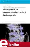 Chirurgická léčba degenerativního postižení bederní páteře - obálka