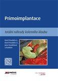 Primoimplantace totální náhrady kolenního kloubu - obálka