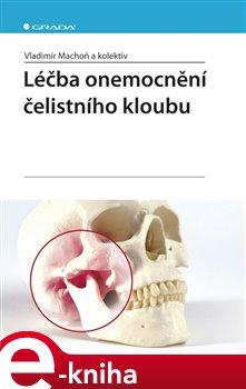 Obálka titulu Léčba onemocnění čelistního kloubu