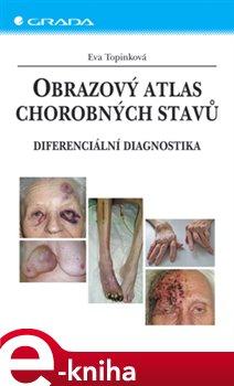 Obálka titulu Obrazový atlas chorobných stavů