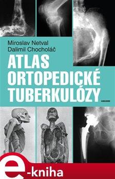 Obálka titulu Atlas ortopedické tuberkulózy