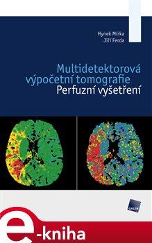Obálka titulu Multidetektorová výpočetní tomografie