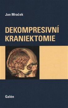 Obálka titulu Dekompresivní kraniektomie