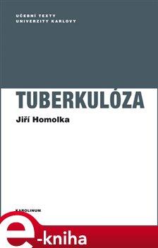 Obálka titulu Tuberkulóza