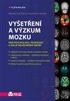 Obálka knihy Vyšetření a výzkum mozku