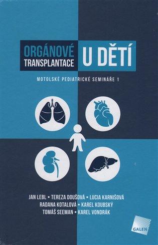 Orgánové transplantace u dětí:Motolské pediatrické semináře 1 - Tereza Doušová, | Booksquad.ink