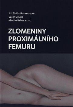Obálka titulu Zlomeniny proximálního femuru
