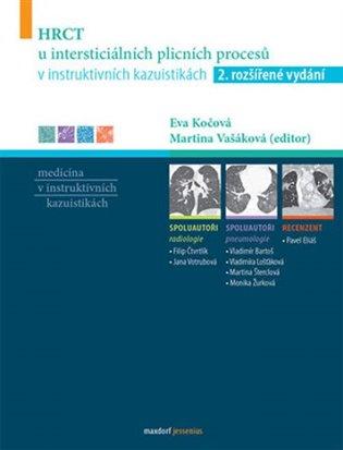 HRCT u intersticiálních plicních procesů v instruktivních kazuistikách - -   Booksquad.ink