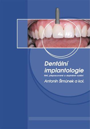 Dentální implantologie:třetí, přepracované a doplněné vydání - Antonín Šimůnek, | Booksquad.ink