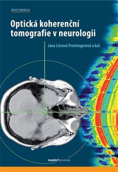 Optická koherenční tomografie v neurologii