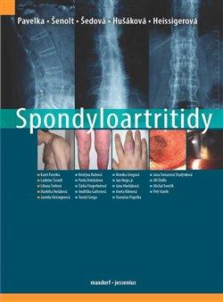 Obálka titulu Spondyloartritidy